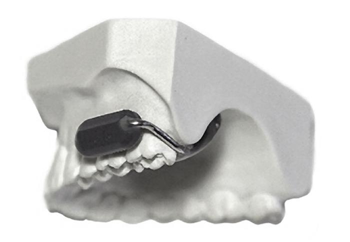 میکروفن دندان آسیا به تازگی رونمایی شد