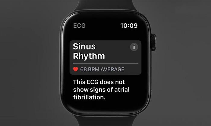ویژگی های سلامت محور اپل واچ ، ارزش اصلی این محصول